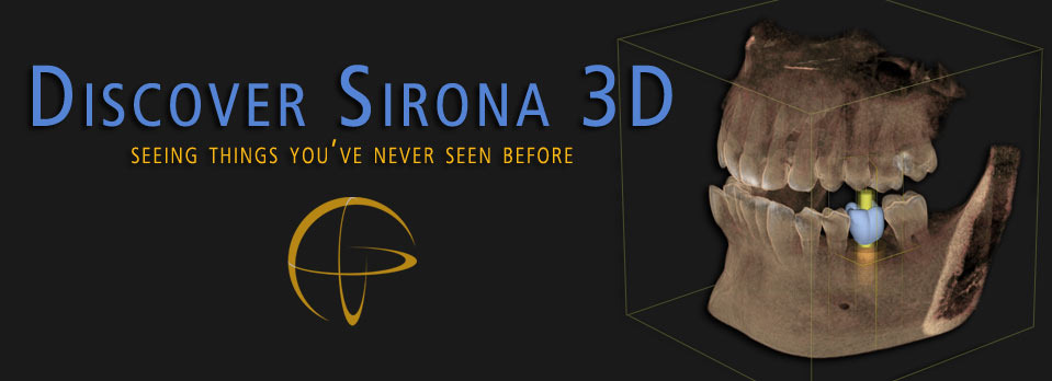 Discover Sirona 3D